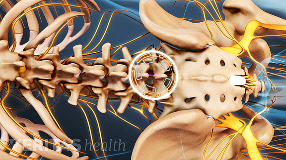 Animated video still of the location of a lumbar microdiscectomy