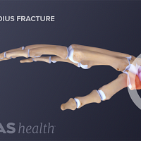Profile view of the hand and wrist showing a distal radius fracture.