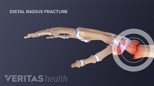 Profile view of a distal radius fracture