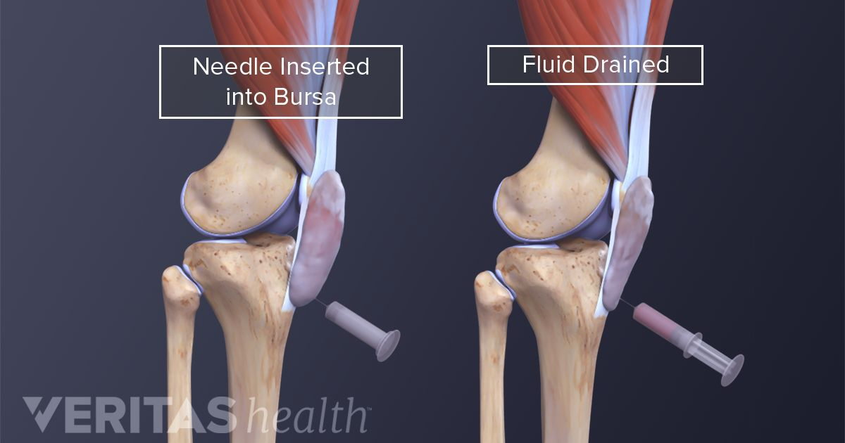 Prepatellar bursitis treatment ccuart Image collections