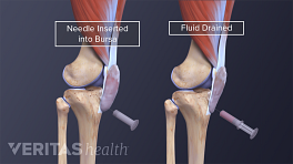 Medical illustration showing the impact of draining fluid from a bursa