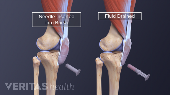 BursitisIllustration of knee bursa being drained
