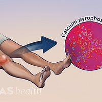 Pseudogout in the knee from the buildup of calcium pyrophosphate crystals.
