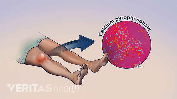 Illustration of knee swelling from pseudogout caused by calcium pyrophospate