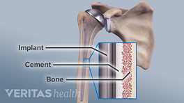 Medical illustration of the bones in the shoulder after having undergone a shoulder replacement, with an inset of the implant, cement and bone also labeled.