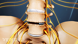 Anterior view of the lumbar spine with the artificial disc inserted