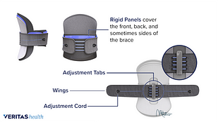 Medicall illustration of a rigid brace and the different parts of the brace highlighted.