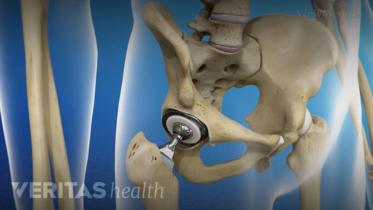 Hip Replacement Surgery >> Hip Replacement Surgery Video Arthritis Health