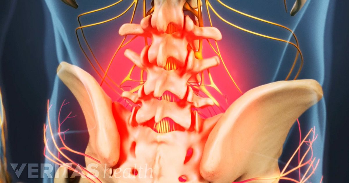 Types of Back Pain: Acute Pain, Chronic Pain, and ...