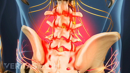 Posterior view of the lumbar spine showing pain in the lower back.