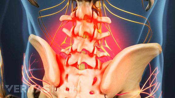 Pain from lumbar degenerative disc disease is usually tolerable. It is normally felt in the lower back, but can radiate into the hips and legs.