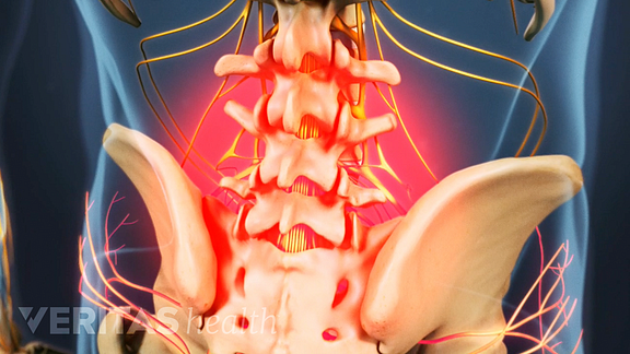pain from lumbar herniated disc disease