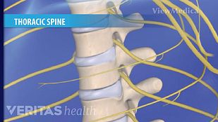 Thoracic Spinal Stenosis Video