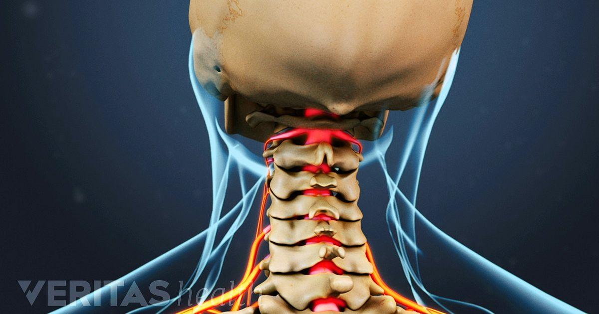 Spinal Arthritis: Symptoms - Back Pain, Neck Pain, Lower ...