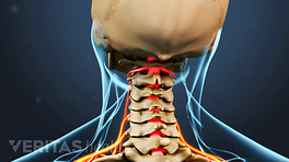 Posterior view of the cervical spine showing radiculopathy