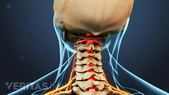 Neck Pain and Numbness in the Arm