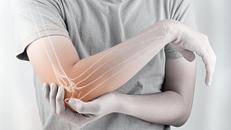 Reactive Arthritis Survival Guide
