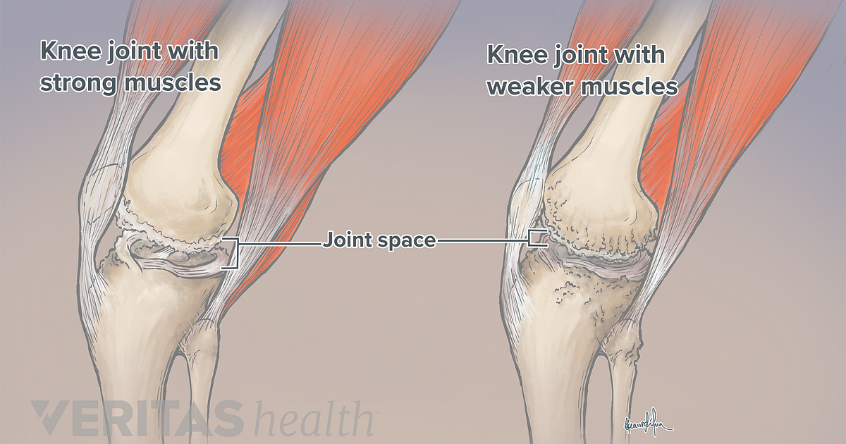 Knee Exercises For Arthritis Arthritis Health