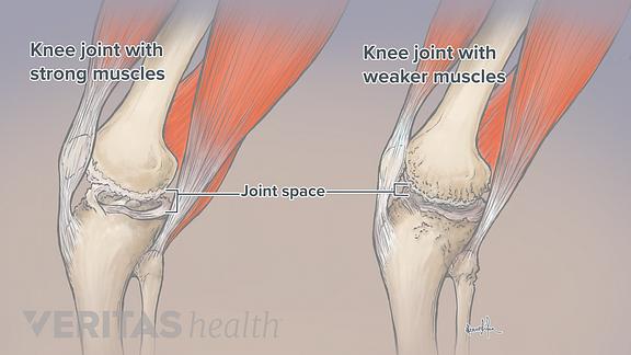 Knee Exercises for Arthritis