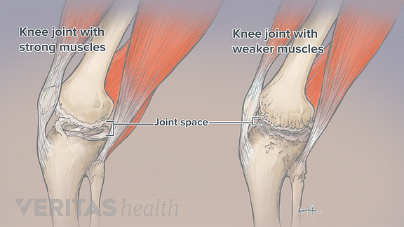 Illustration showing how strong muscles support the knee joint and help maintain healthy joint space between the bones.