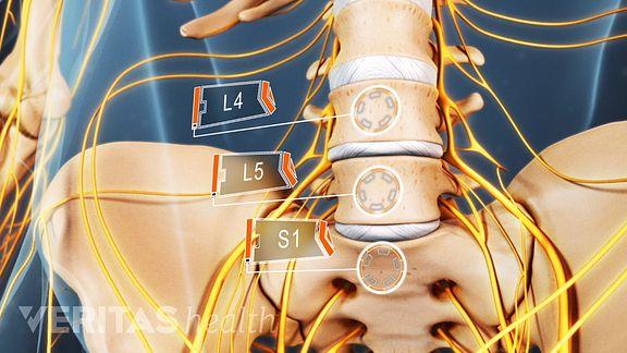 Lumbago ciatica sintomas y tratamiento