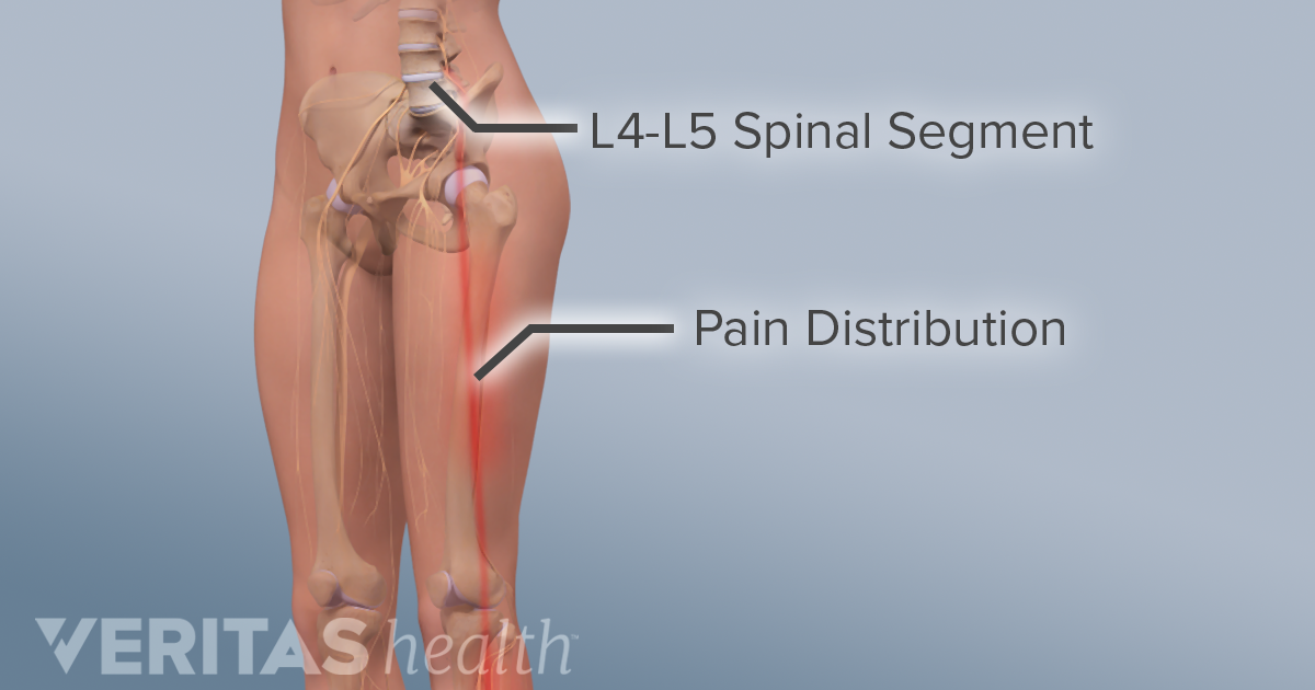 All About The L4 L5 Spinal Segment