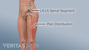 Illustration of the l4-l5 spinal segment and lumbar radiculopathy symptoms pain distribution down the hip and leg