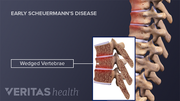 Wedged Vertebrae Early Scheuermann's Disease