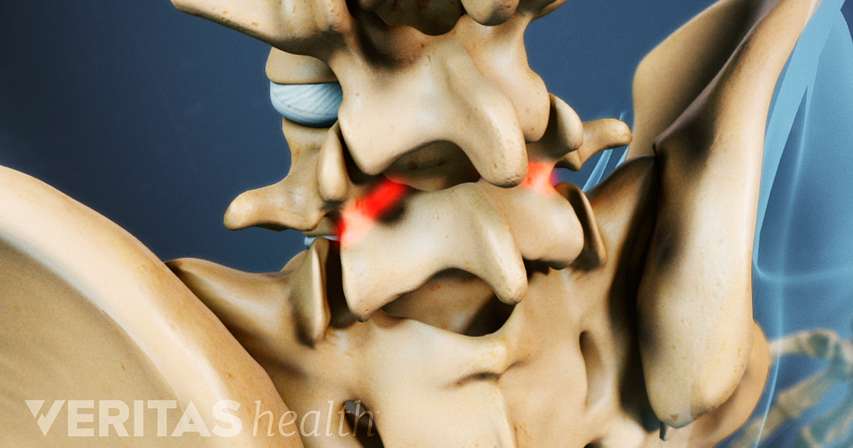 isthmus spondylothesis Denoting an anatomic isthmus conservative treatment has shown a modest improvement following surgery for patients with lumbar isthmic spondylolisthesis.