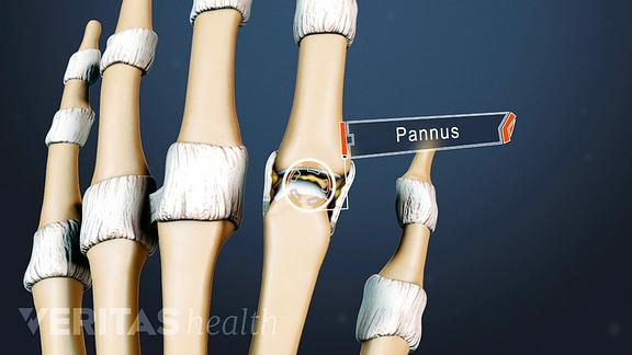 Hand anatomy highlighting pannus