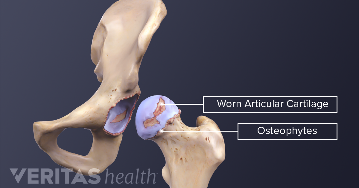 What Is Hip Osteoarthritis?