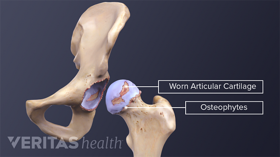 worn hip cartilage and osteophytes
