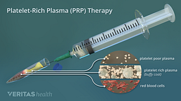 Platelet-rich plasma therapy showing the combination of platelet poor plasma, platelet rich plasma, and red blood cells.