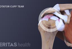 Medical image of a rotator cuff tear