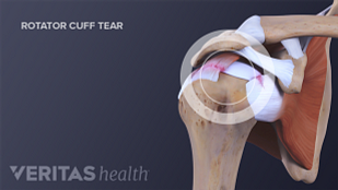 Medical image of a rotator cuff tear