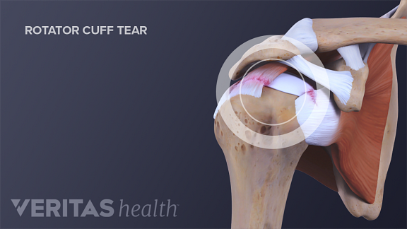 Anterior view of the shoulder joint showing a rotator cuff tear