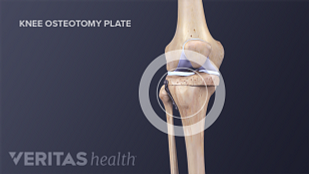 Knee osteotomy is the cutting of bone to correct the knee's alignment and improve its function with the goal of reducing chronic arthritis knee pain.