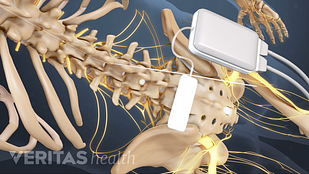 Animated video still showing implantation of spinal cord stimulator for lower back pain
