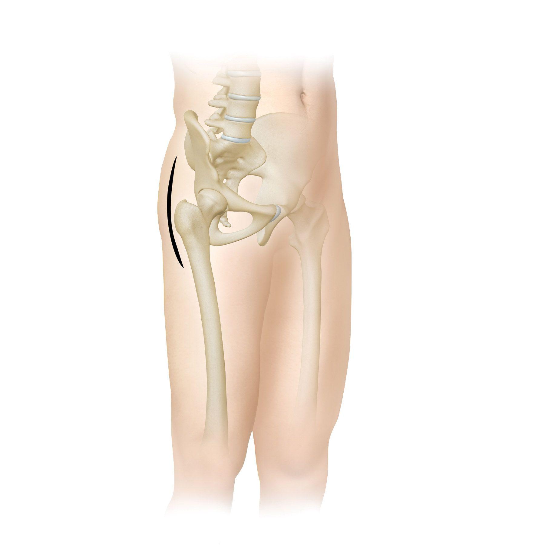 Zimmer Biomet Hip Replacement