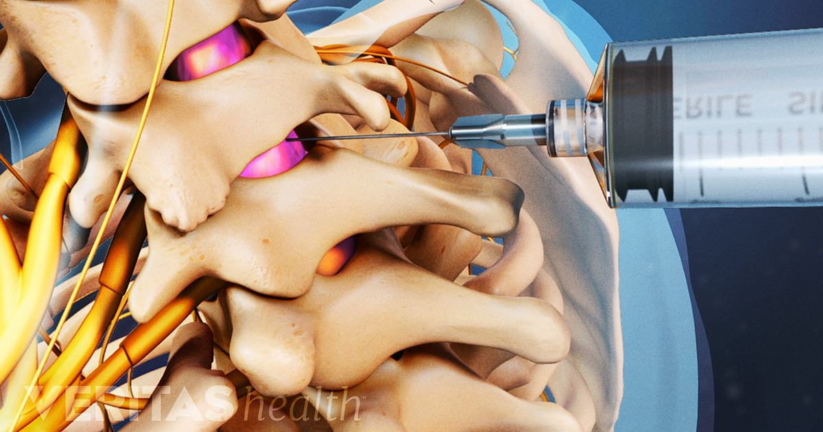 long term effects of cervical epidural steroid injections