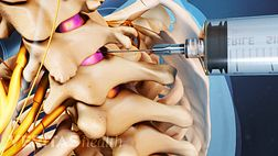 Cervical Epidural Steroid Injections
