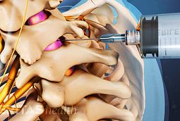 Cervical Epidural Steroid Injection