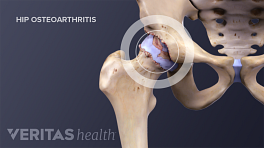 Illustrated skeleton showing osteoarthritis in the hip joint