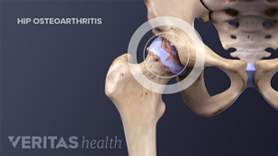 Hip Osteoarthritis illustration