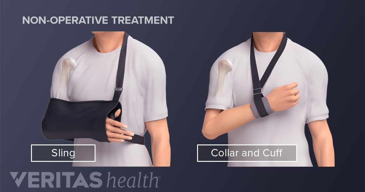 Treating A Proximal Humerus Fracture