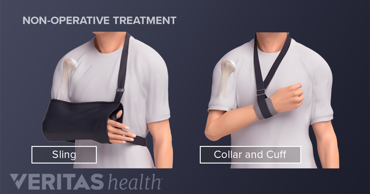 Treating A Clavicle Fracture