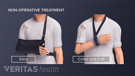 Person with a humerus fracture using a sling or collar and second inset showing using a  cuff.