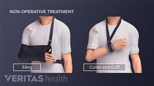 Nonsurgical treatment for a humerus fracture including using a sling or collar and cuff.