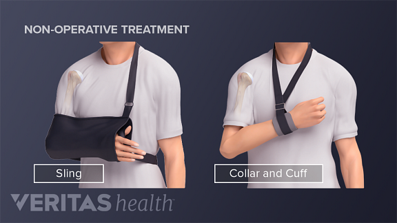 slings for proximal humeral head fracture treatment
