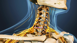 Medical illustration of the cervical spine, nerves are visible.